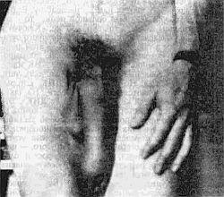как увеличить объем пениса Анадырь