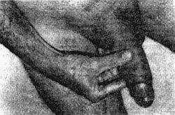 Увеличение полового члена медом рецепты для роста пениса
