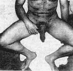 Способы увеличения полового члена эффективные способы увеличить пенис