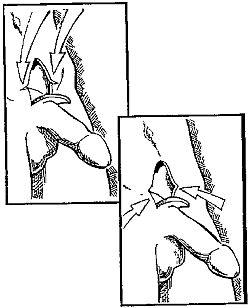 Как увеличить диаметр и объем члена