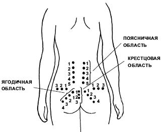 Видео лфк при остеохондрозе шеи и спины